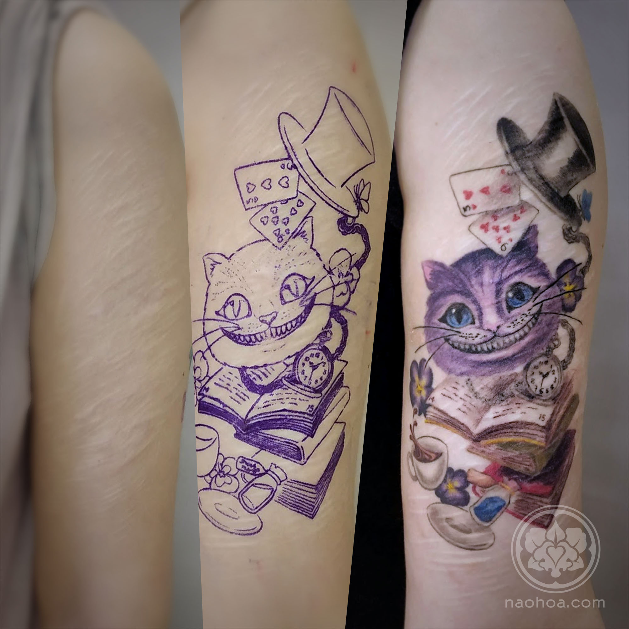 Over harm scars self tattoo Tattoo artist